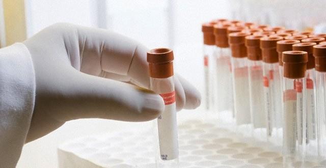 Japonya Tıp Sektörüne Bir İlki Kazandırdı
